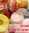 Acne Remedy