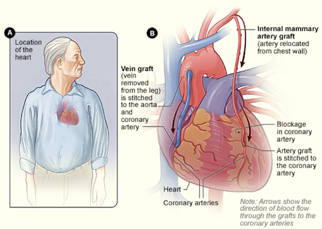 Brief Overview of CABG
