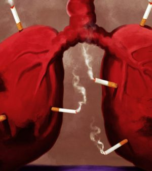 Cigarettes the Number One Reason for Lung Cancer