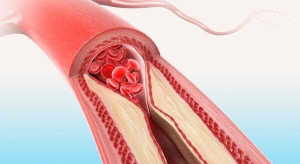 Improves Cholesterol