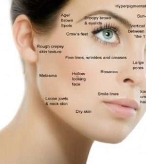 Skin Specialists Cure Your Acne Problems